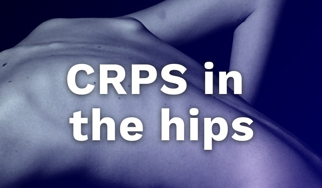 CRPS in the hips?