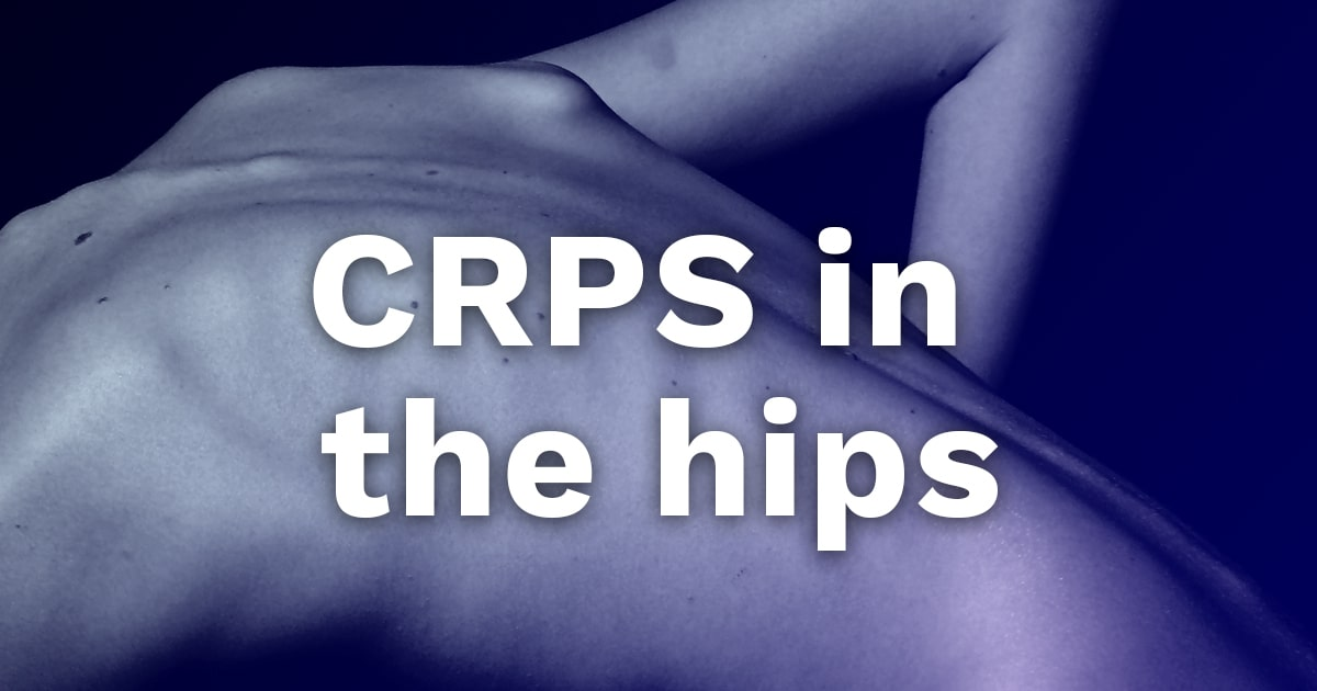 crps hips