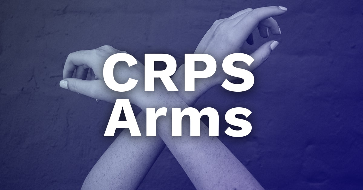 complex regional pain syndrome arms